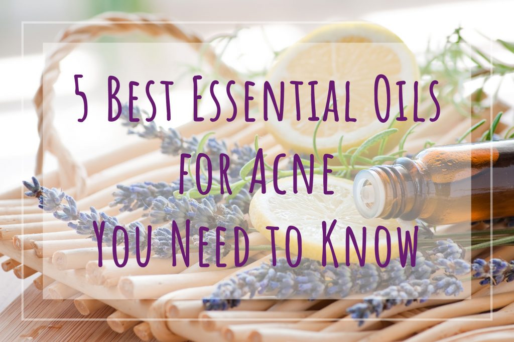 5 Best Essential Oils for Acne You Need to Know